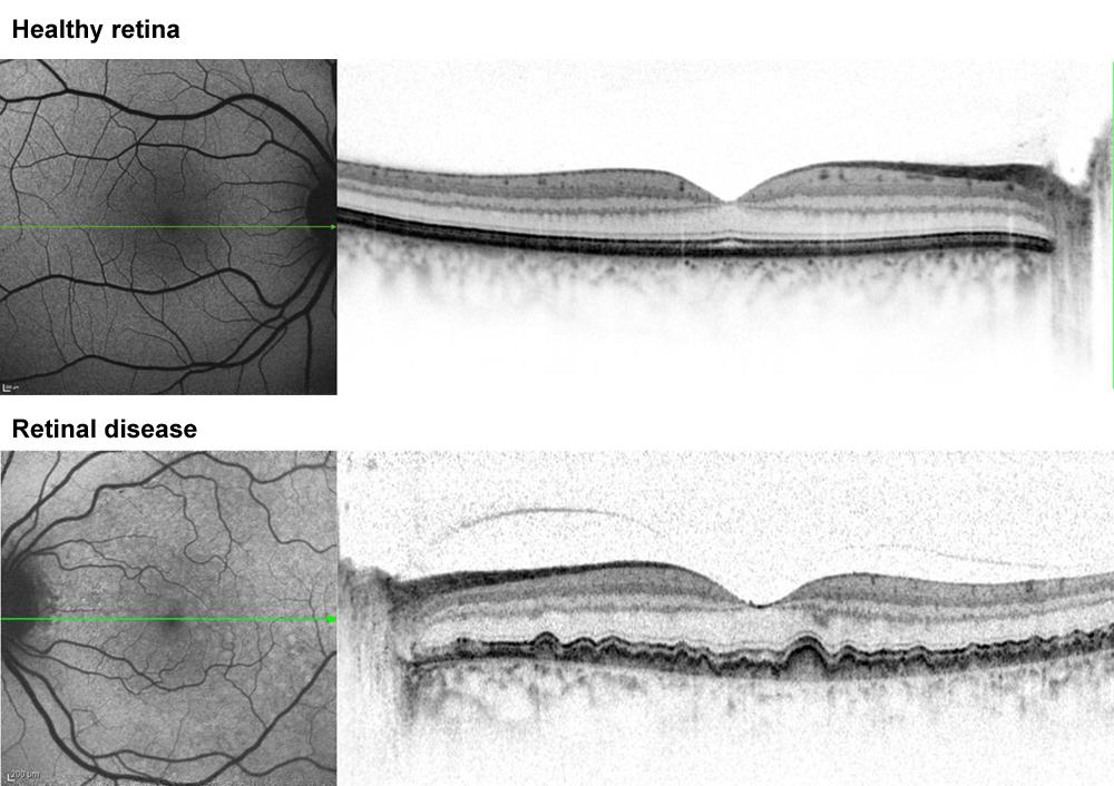 OCT of the retina