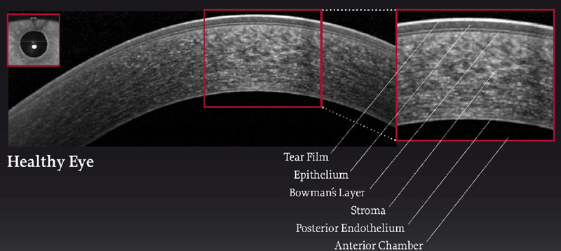 OCT of a normal cornea