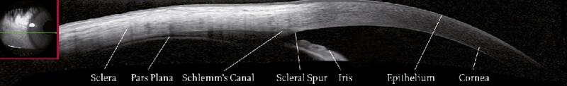 OCT image of the sclera with iridocorneal angle
