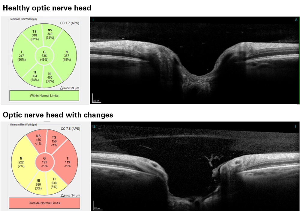 OCT of the optic nerve head