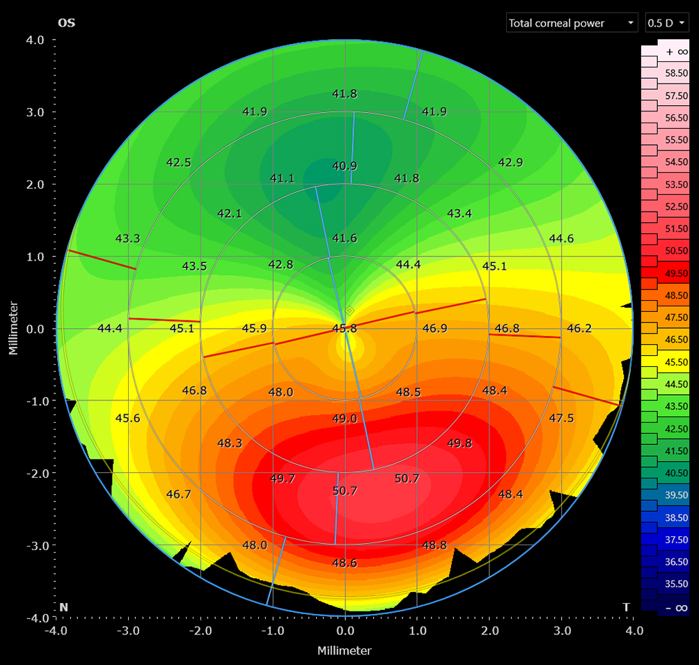 A map for analyzing the corneal structure