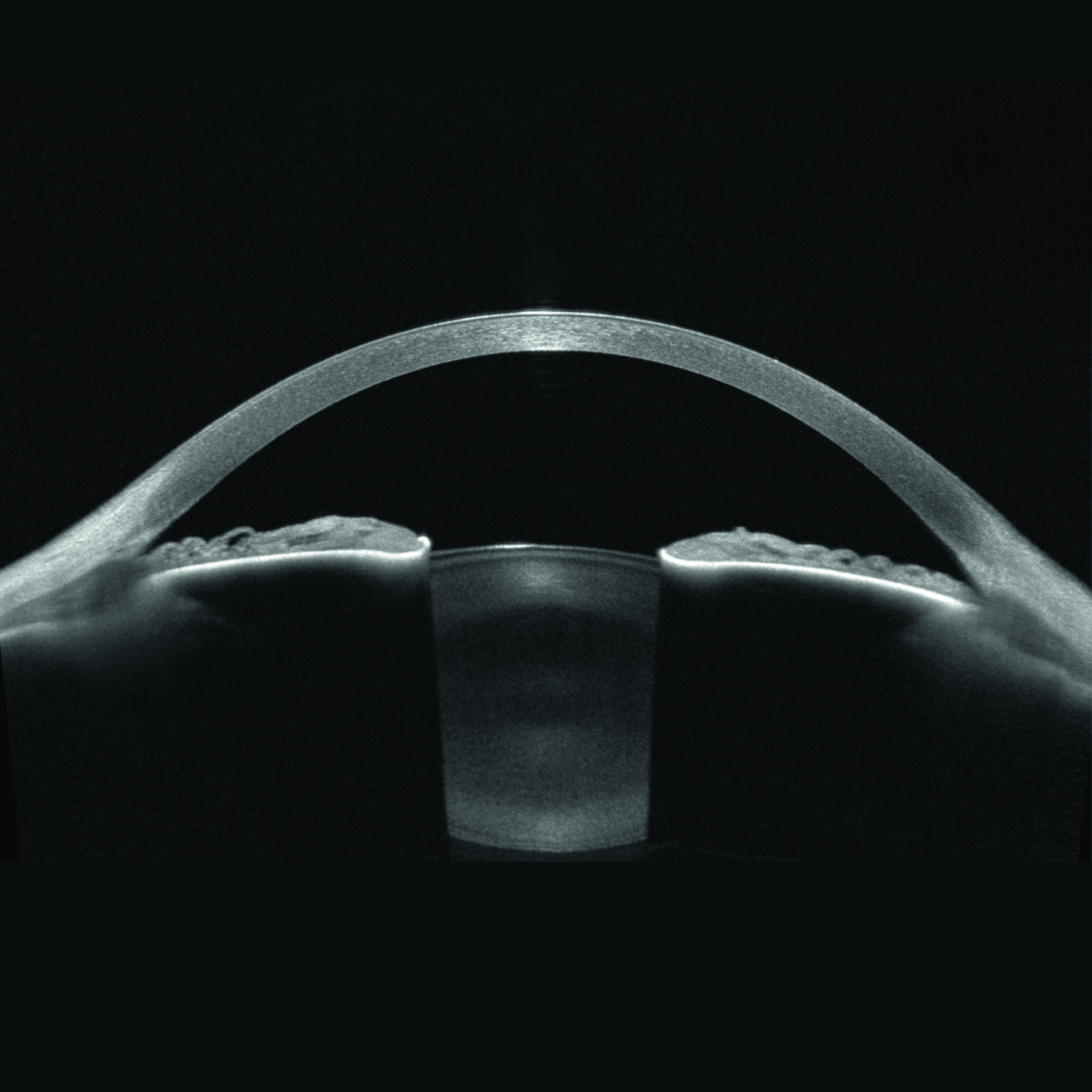 High-resolution visualization of the entire anterior segment, from the anterior surface of the cornea to the posterior surface of the lens.